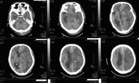 頭部CTの画像