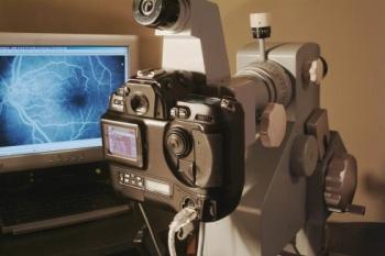 フルオレセインを使った蛍光眼造影の画像
