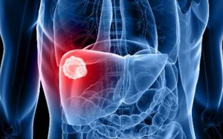 急性肝炎や肝臓がんなどで上昇します