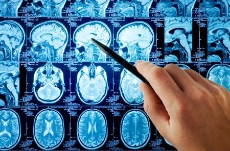 頭部MRIの画像