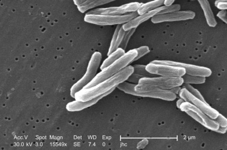 結核菌の画像です