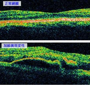 OCTによる網膜の断面写真です