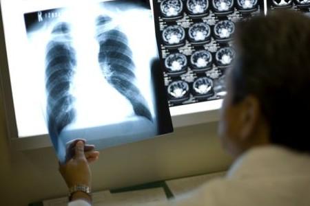 呼吸器系疾患