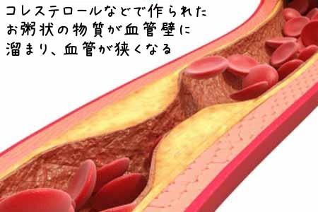 血管の弾力も失われます