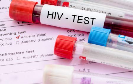 HIVの採血サンプル
