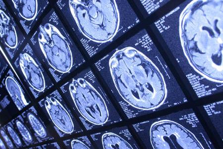 各種画像検査で脳の異常を見つけます