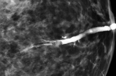 乳管のどこに病変があるかを特定します