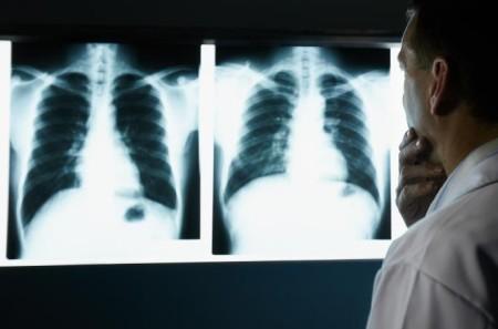胸部のエックス線写真