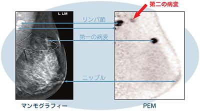乳房の微小な病変を発見します