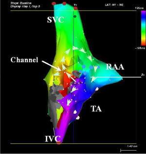 不整脈の立体画像検査について