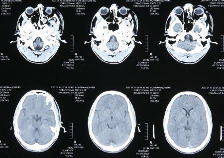 隠れ脳梗塞の画像