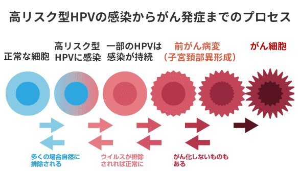 HPV感染から異形成を起こす仕組み