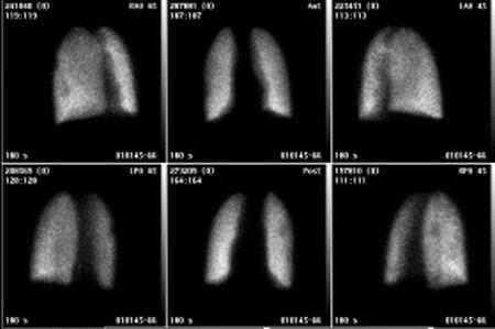 肺シンチグラムの写真です