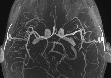 未破裂の脳動脈瘤を発見