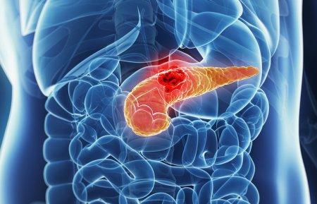 膵臓の病気