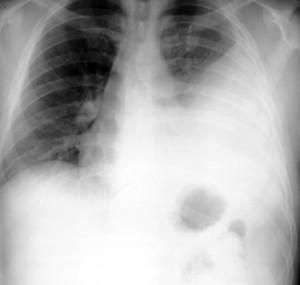 左胸に胸水が溜まっています