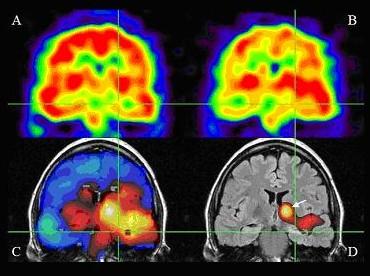 SPECT検査における脳の断層画面です