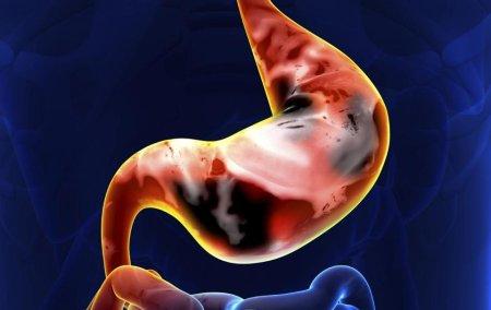 ピロリ菌の感染が発生に関与