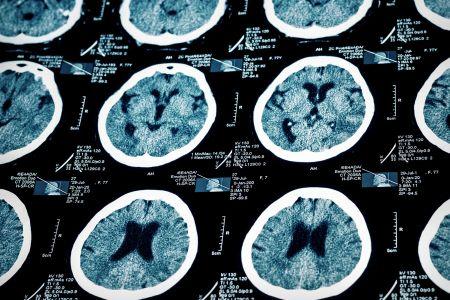 脳血管の画像を読影する医師