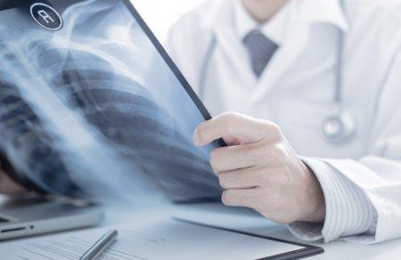 呼吸器科の専門医による診断